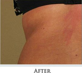carboxytherapy for weight loss after